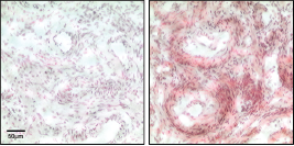Lysophosphatidic Acid Antibody (504B3) - Echelon Biosciences