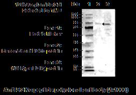 Sheep Anti-Human DGK Alpha Peptide Antibody - Echelon Biosciences