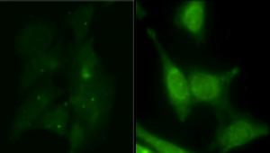 Anti-PtdIns(3)P IgG antibody - Echelon Biosciences