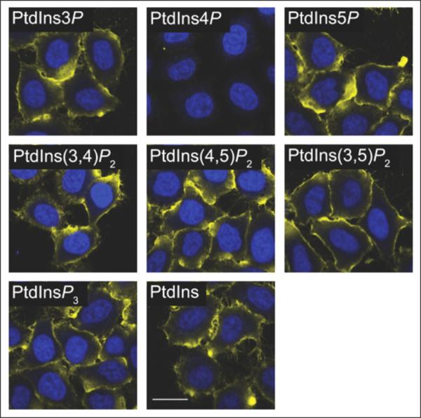 Liposome controls for lipid ICC - Echelon Biosciences